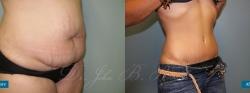abdominoplasty_patient03_03