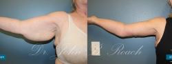 Brachioplasty Arm Lift