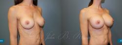 breastaug_patient16_02