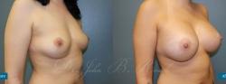 breastaug_patient20_02