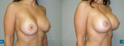breastaug_patient21_02