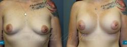 breastaug_patient22_01